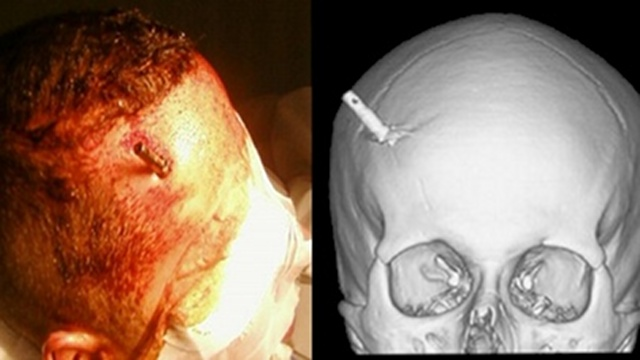 Click here to read This Man Had a Taser Dart Stuck In His Brain and Didn't Even Realize