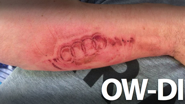 An Exploding Airbag Branded An Audi Logo On This Man's Arm