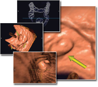 Scientists Say Virtual Imaging Colonoscopy As Good As Real Thing, With Less Probing