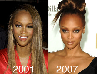 Did Tyra Banks Have A Nose Job?