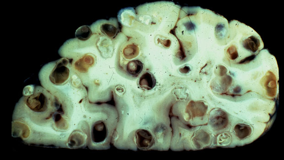 Brain Tapeworms Are Real, And They're Disgusting