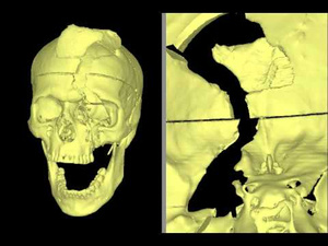 Watch How a Rod Impaled a 19th Century Man's Skull Without Killing Him