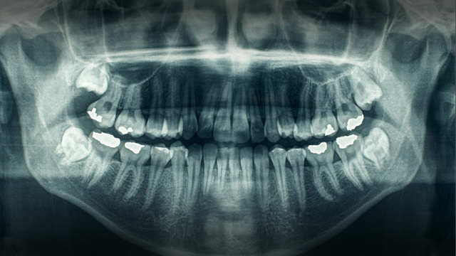 A Motorcycle Rider's Teeth Were Knocked Out By A Golf Ball