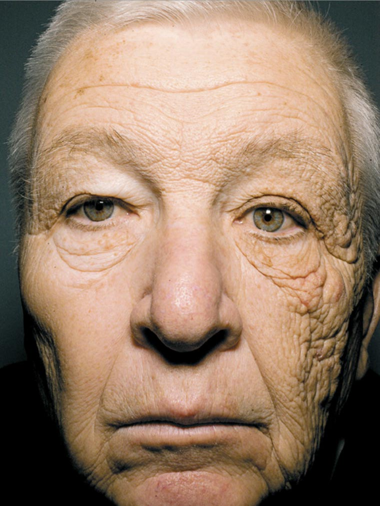 Man with skin damage due to no window film