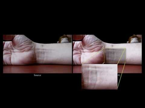Click here to read New X-Ray Vision-Style Video Can Show a Pulse Beating Through Skin