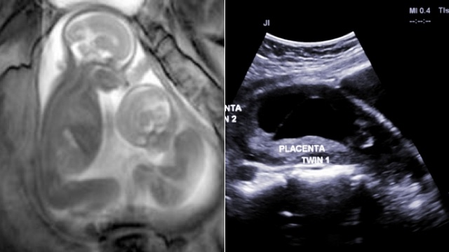 Click here to read Video MRI Shows Unborn Twins in Incredible Detail