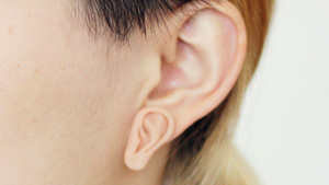 Are Double Ears a Genetic Disorder Or a Freaky Fashion Trend?
