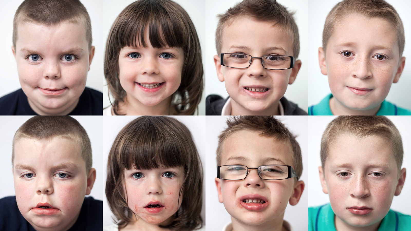 Click here to read Hilarious Before and After Kids' Portraits Show the Horrors of Oral Surgery