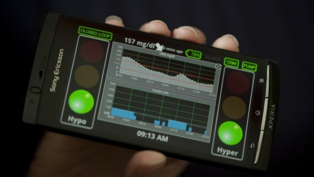 Click here to read This New Artificial Pancreas Could Solve Type 1 Diabetes