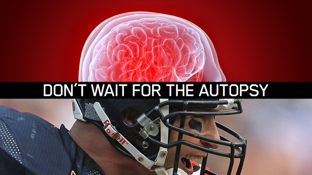 Can Science See Inside An NFL Player's Skull Before It's Too Late?