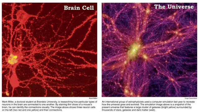 Which is bigger: the Universe or the human brain?
