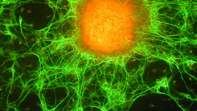 "Stem cell finding will lead to a ""paradigm shift"" in cancer treatments"