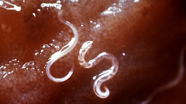 Why doctors are treating allergies with parasitic worms