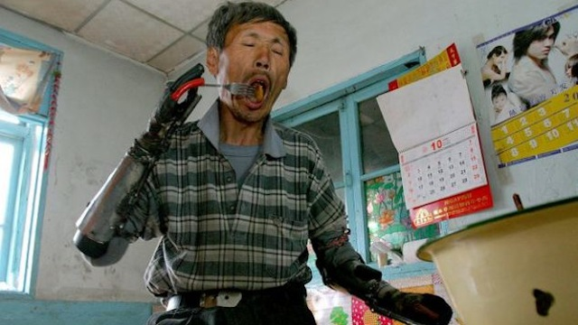 Awesome Chinese Iron Man Built Himself Bionic Arms After His Homemade Bomb Blew Up His Real Arms