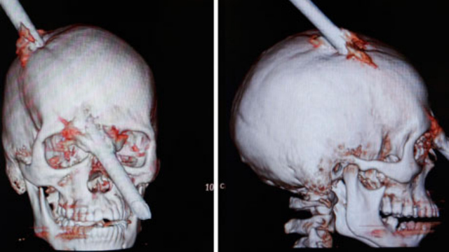 Click here to read Construction Worker Impaled Through the Brain Is a Modern-Day Phineas Gauge