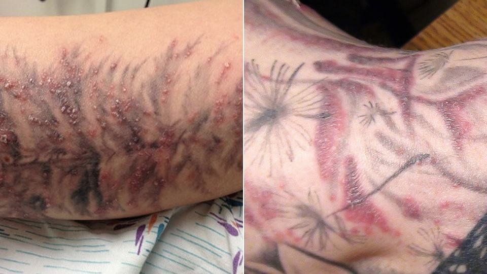 Red, Bubbly Rashes Will Make Your Dumb Tattoos Even Dumber [Tattoos]