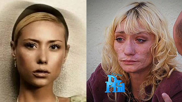 Former Top Model Has Face-Altering Meth Addiction
