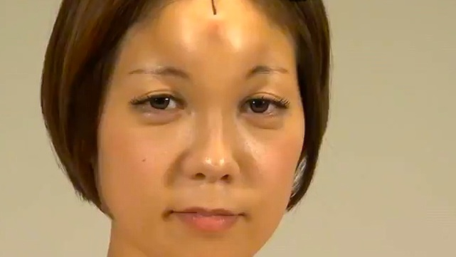 Forehead Donut Saline Injections