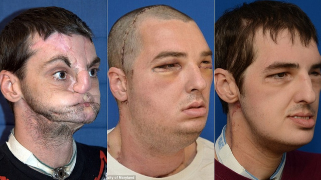 The Man Who Went Under the Most Extensive Face Transplant Ever Has an Amazing New Face