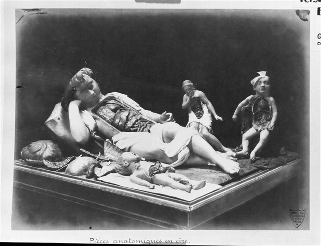 Creepy wax anatomy models from the 1700-1800s. Apologies if you planned on sleeping tonight.