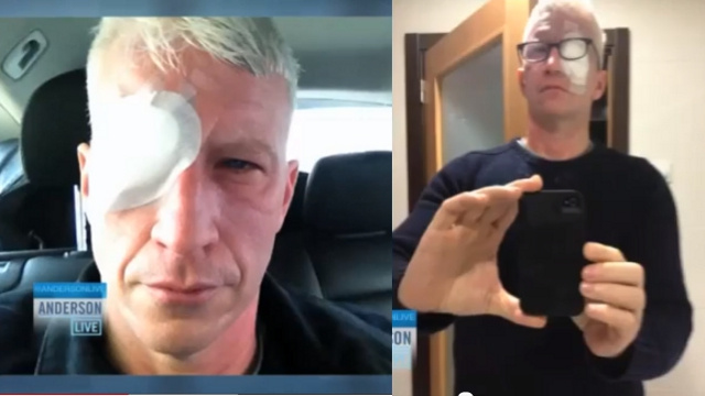 Anderson Cooper Went Blind After Burning His Balls