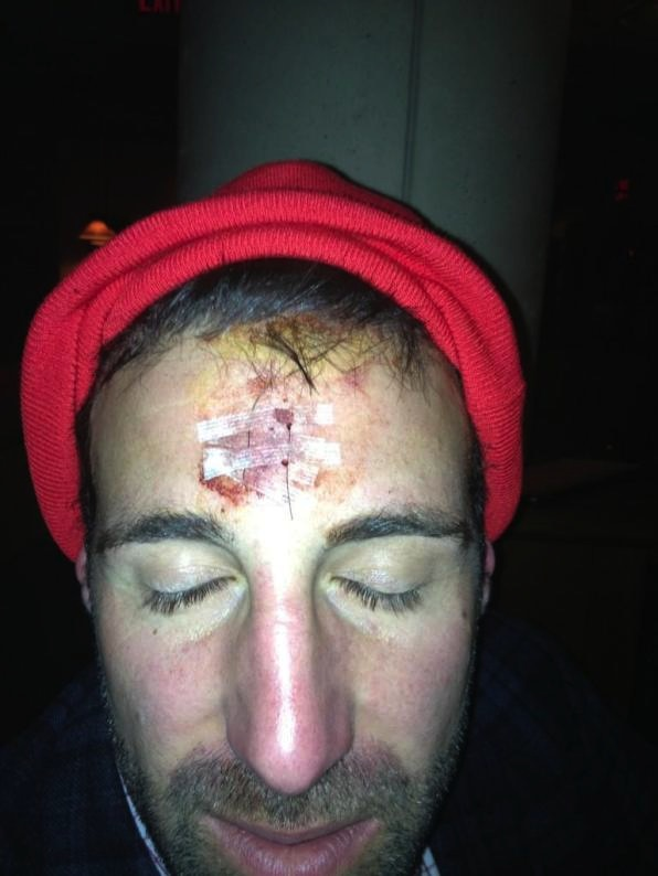 A Message From Mike Vrabel's Stitched-Up Forehead: Always Wear …