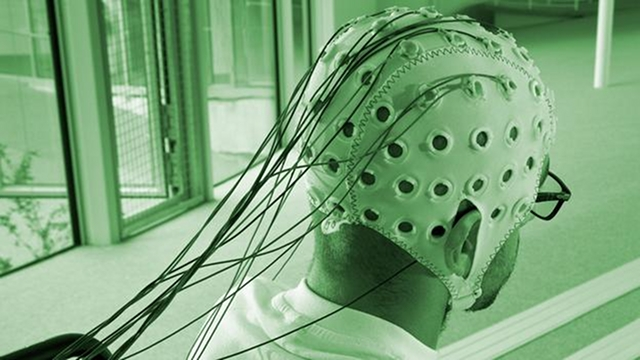 Will we ever have cyborg brains?