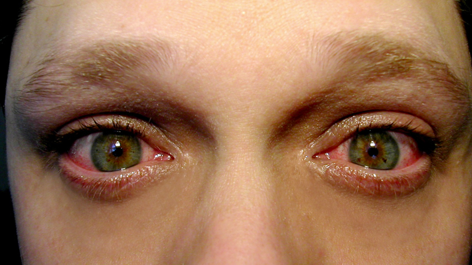 Controversial New Surgery Caused Bone Growth In Woman's Eyes