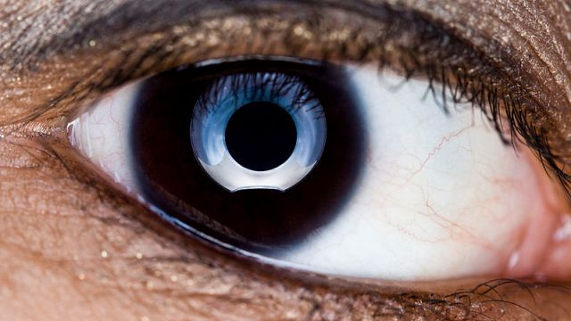 Phantom Eye Syndrome: When People Without Eyes Can Still See