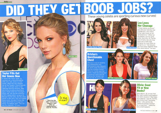This Week in Tabloids: Here's a Picture of Taylor Swift's Breast Implant Scar