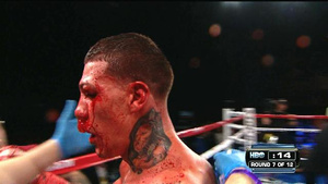 """I Gotta Stop It, Your Son's Gonna Die"": Fight Finally Called Because Gabriel Rosado Couldn't See Anything Through his Blood-Covered Face"