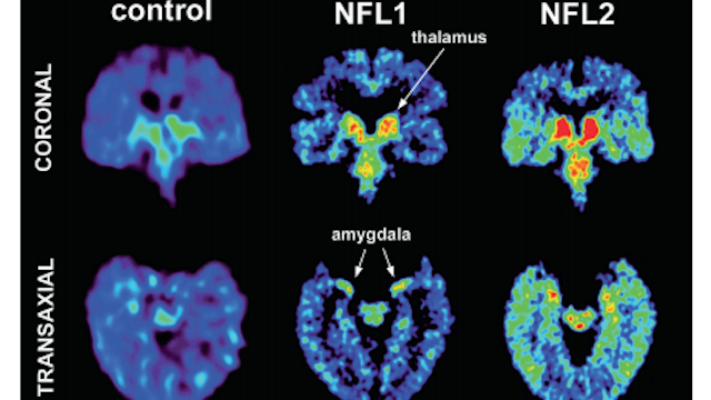 New Study Reveals That CTE May Be Detectable In Living Patients
