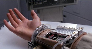Bionic Hand Lets the Wearer Feel, Not Just Touch
