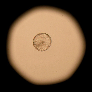 Embrace Of Embryonic Testing During IVF Doing More Harm Than Good?