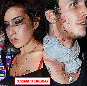 Amy Winehouse Is A Bloody Mess. Literally.