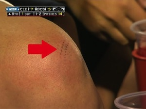 This Woman's Kneecap Is Pretty Sure That Asdrubal Cabrera Hit A Two-Run Homer Last Night