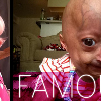 The Princess and the Trolls: The Heartrending Legend of Adalia Rose, the Most Reviled Six-Year-Old Girl on the Internet