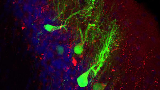 Transplanted Brain Cells Can Outlast The Body's Biological Clock