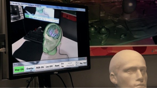 Microsoft's Kinect Can See Inside Your Skull With Its Almost X-Ray Vision