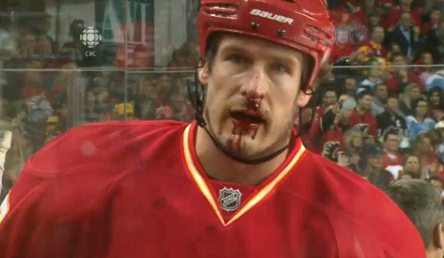 Here's Your First Bloodied-Face Picture Of The New NHL Season