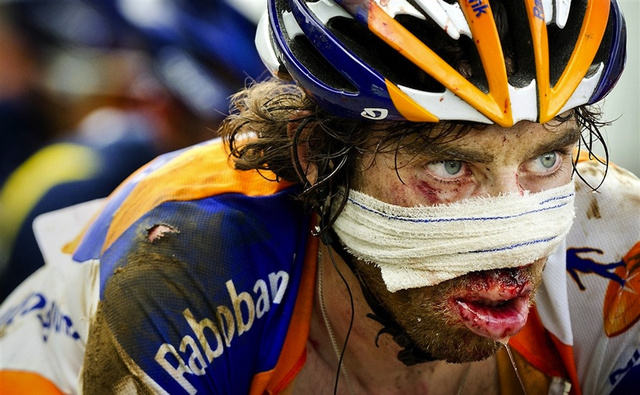 Hamburger Face Won't Keep This Tour De France Rider Down