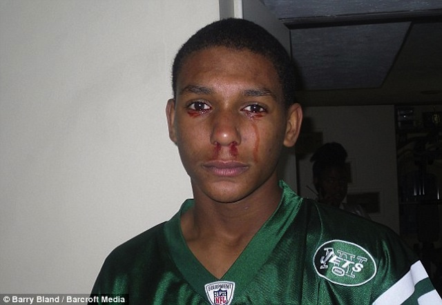Of Course The Kid Who Cries Blood Is A Jets Fan