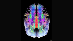 Scientists Can Read Dreams Using Brain Scans