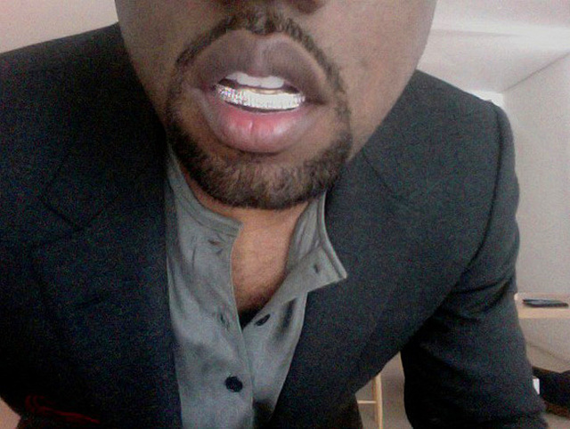 Will Kanye West's Diamond Teeth Ruin His Mouth?