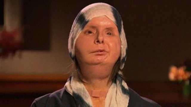 Chimp Attack Victim Says Her New Face Is 'Beautiful'
