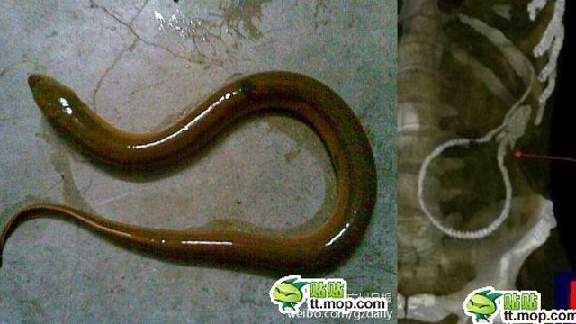wtf - Chinese Man Requires Emergency Surgery After the Swamp Eel He Stuck Up His Butt Gnaws Through His Colon