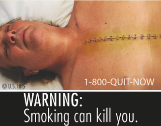All the Disgusting Pictures the FDA Is Going to Put on Cigarette Boxes