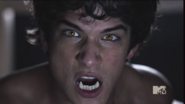 Watch the first 8 minutes of MTV's Teen Wolf!