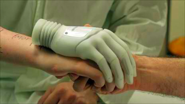 Voluntary amputees opt for bionic hands over real ones