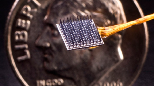 Brain-computer implant has passed 1000-day milestone